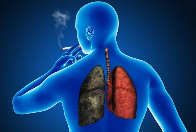 Ce aliment îti reduce riscul de cancer pulmonar dacă îl mănânci constant