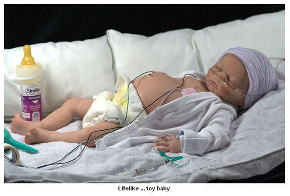 bebelus intubat