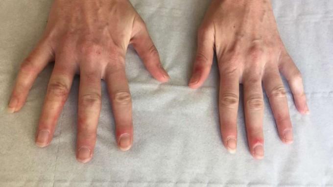 8 simptome descoperite recent ale COVID