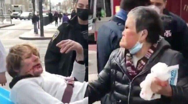 O femeie de 76 a fost, atacată pe stradă dar s-a apărat atât de bine, că agresorul ei a ajuns la spital